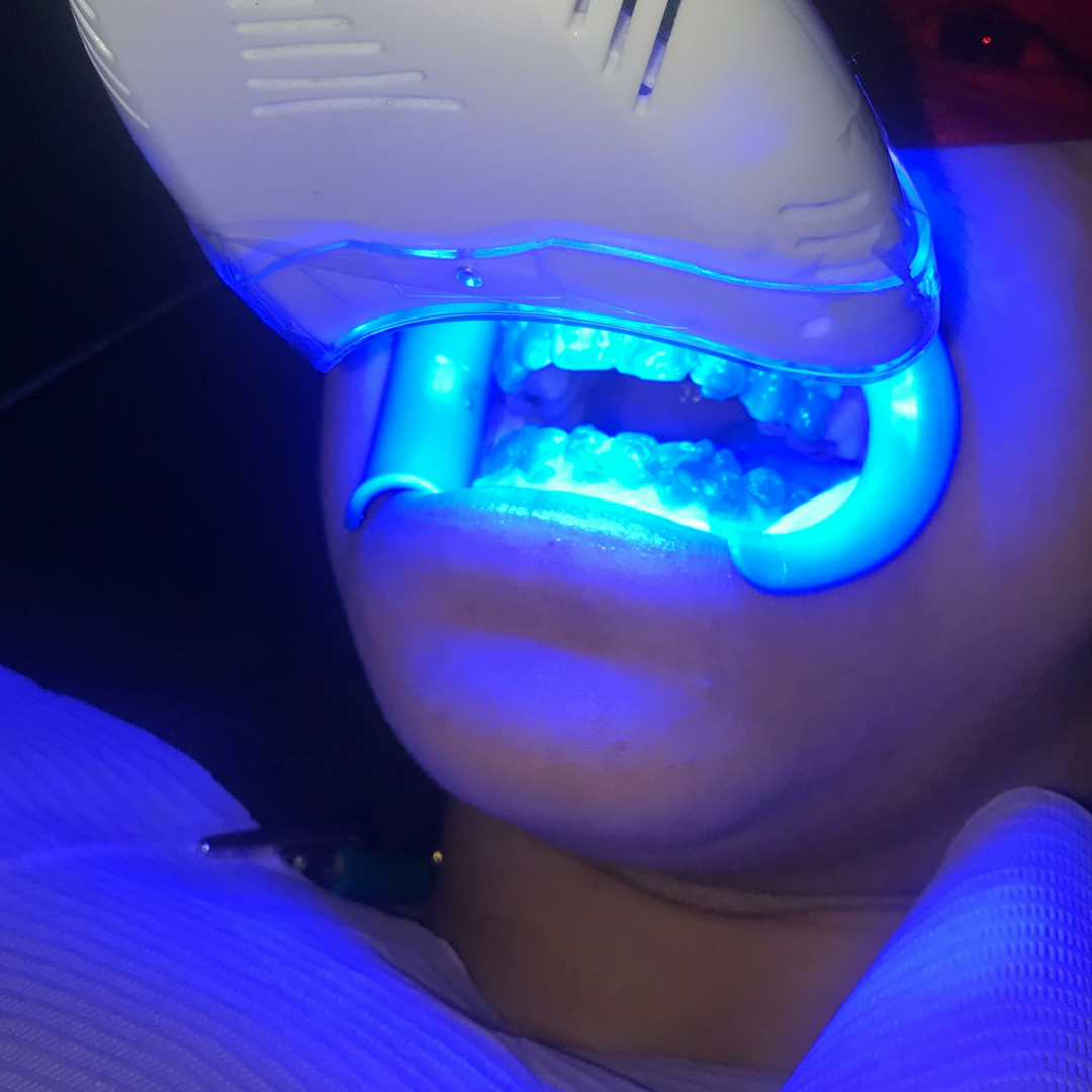 FREE In-Office Laser Teeth Whitening